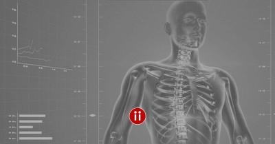 X-Ray Suche im Active Sourcing