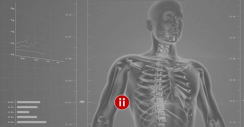 Was Ist Die X Ray Suche Oder Röntgen Methode Active Sourcing
